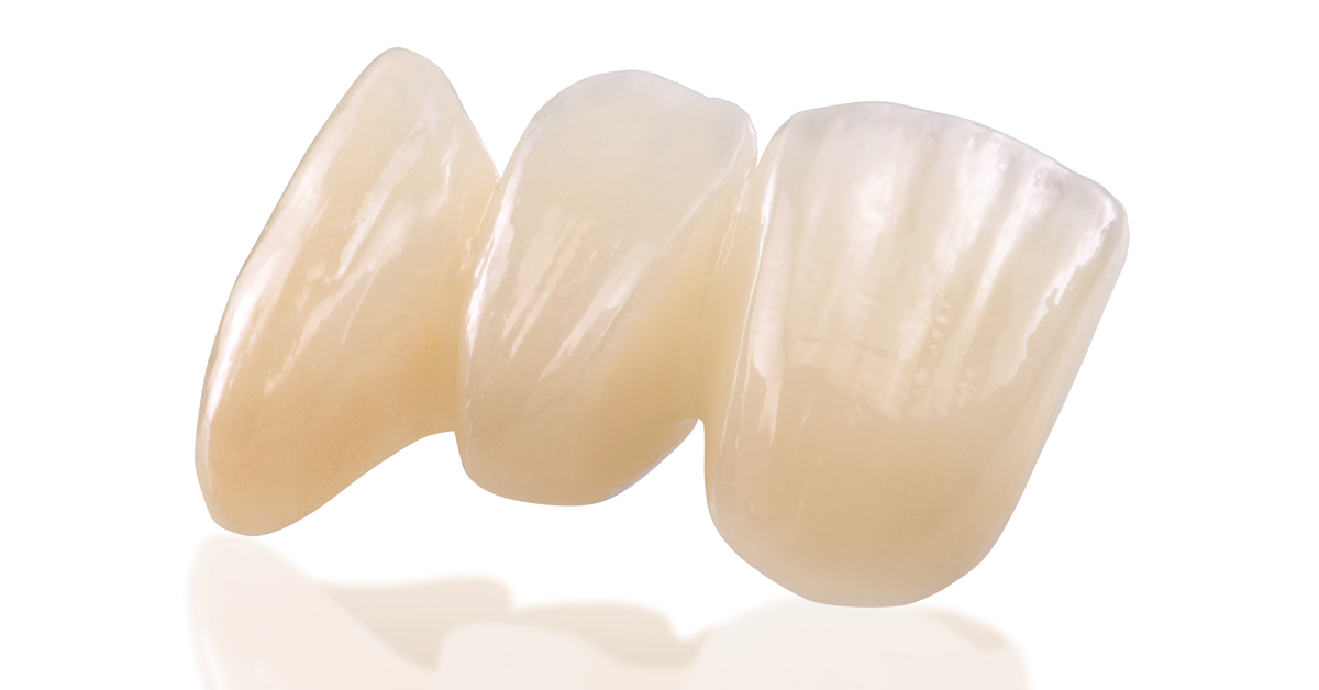 IPS e.max ZirCAD. Offers now even more possibilities