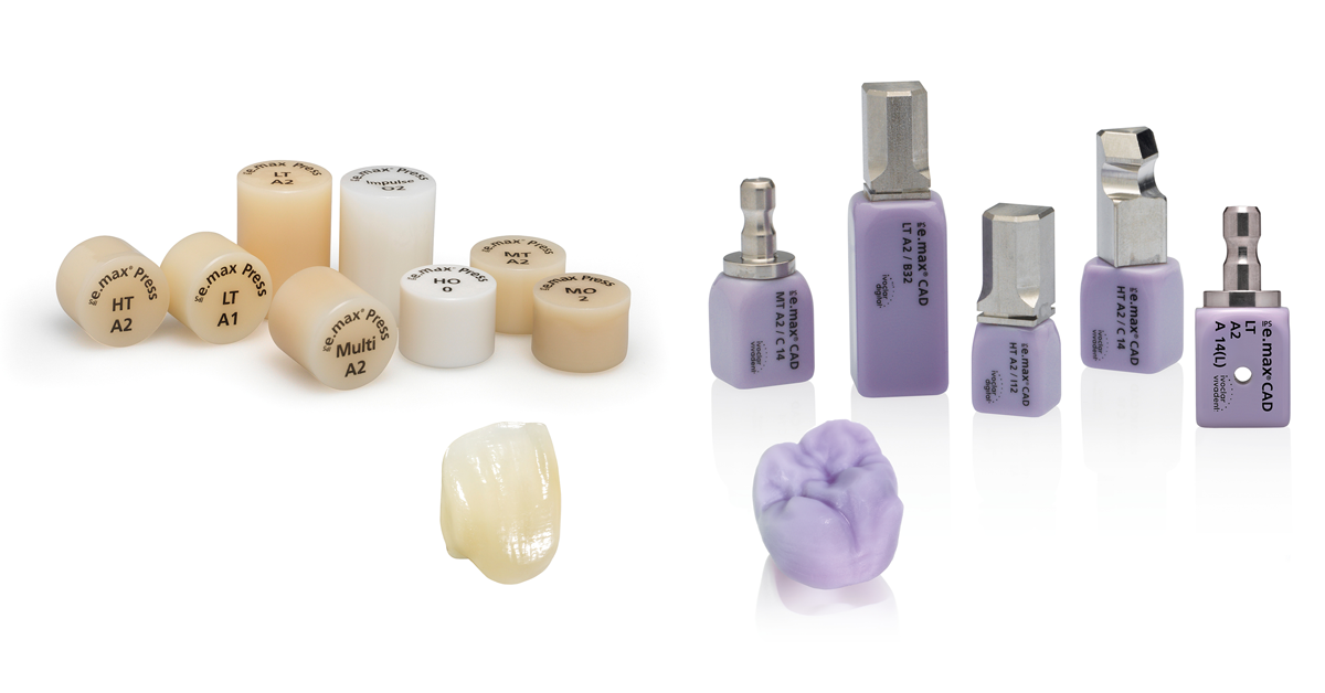 How durable are IPS e.max Press and IPS e.max CAD restorations?