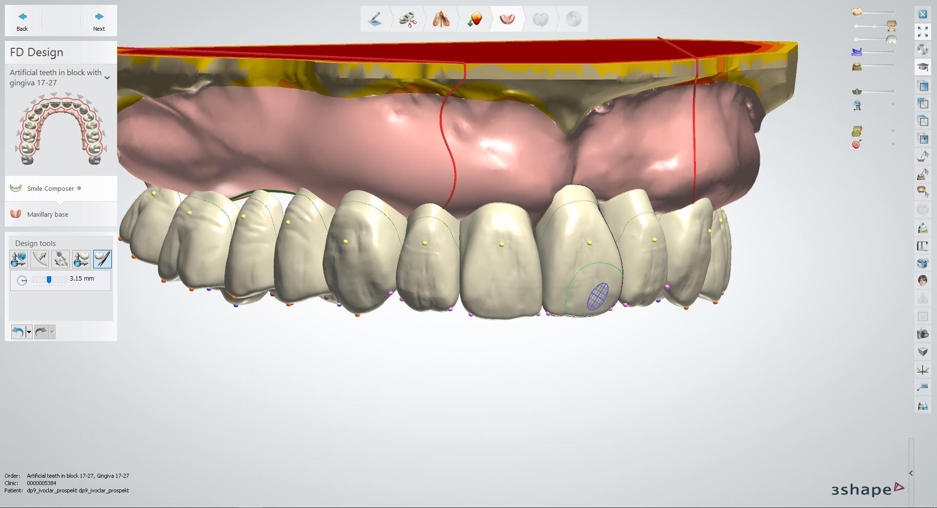 Software de Digital Denture